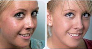 Maquillar  pieles con acné